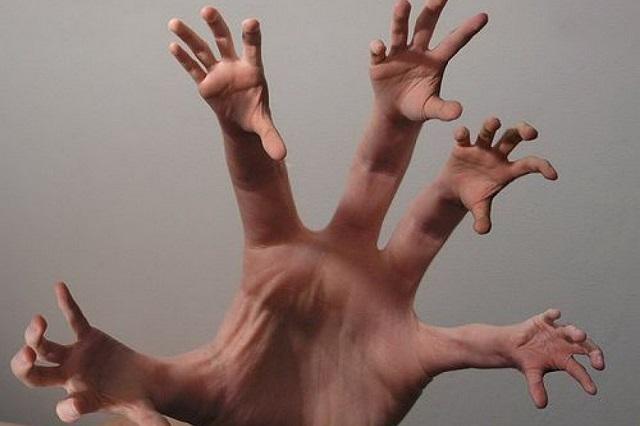 Ученые нашли способ регенерации потерянных пальцев