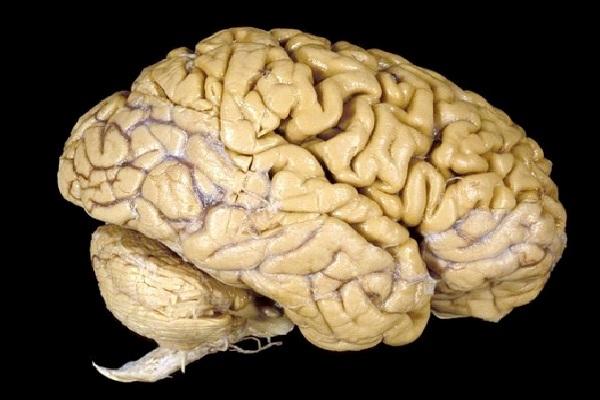 Почему наш мозг начал сокращаться 20 тыс. лет назад?