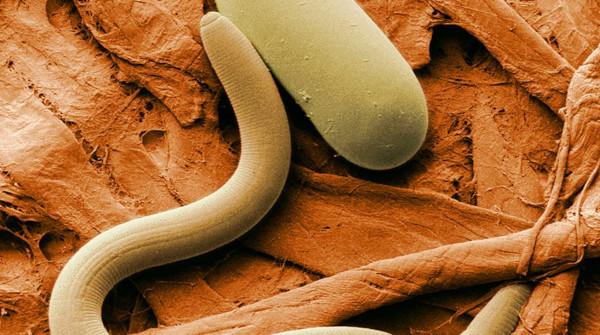 В США обнаружили устойчивых к мышьяку трехполых червей
