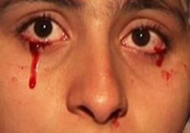 Мужчина заплакал  кровью, причина явления врачам неизвестна